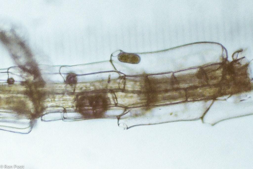 Flesvormige sponscellen langs het takje van een veenmos. 100x.